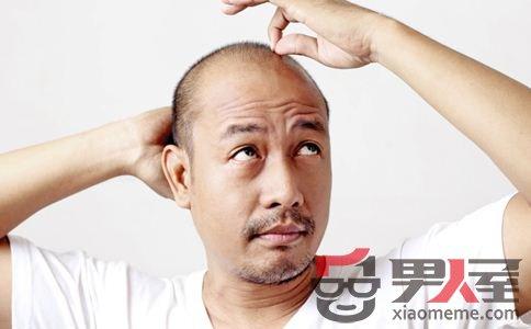 如何预防脱发 预防脱发吃什么 预防脱发的方法