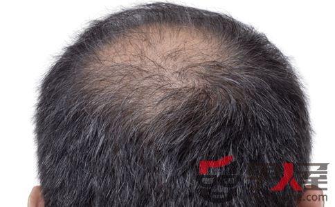 七大类型脱发如何预防 预防脱发吃什么