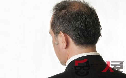 男性脱发能治好吗 脱发如何治疗
