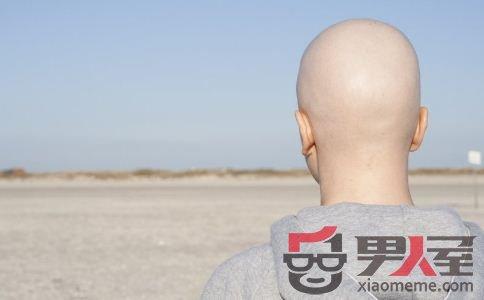 那些光头男星给我们的启示:秃顶预防劳逸结合