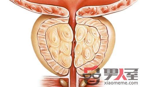 前列腺炎的秋冬保健原则 坚持锻炼多喝水